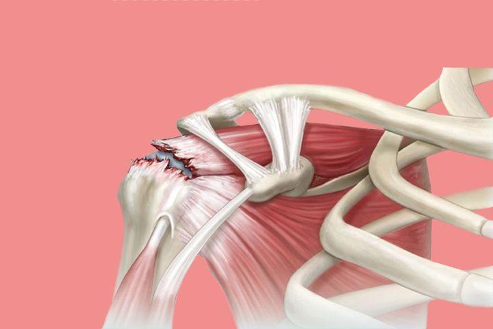 Una de las regiones más afectadas en los deportistas de alta competencia y las personas que sufren golpes y caídas, es la articulación del hombro. El manguito rotador es una estructura de músculos y tendones que le dan firmeza a tu hombro. Y los cuatro músculos que lo componen son: Supraespinoso. Infraespinoso. Redondo menor. Supraescapular. …