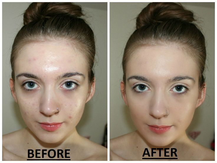 With the use of W-Honey Beam , My face get lighter and smoother.