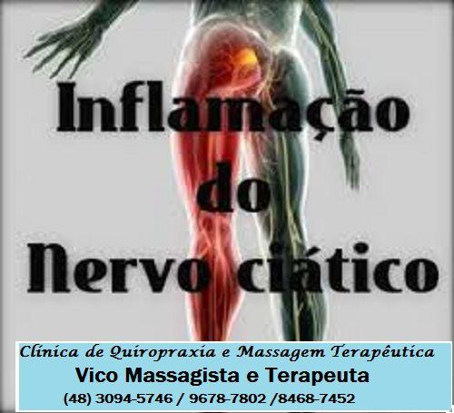 Clínica de Massagem Terapêutica e Quiropraxia em São Jose SC, Massoterapia: NERVO CIÁTICO - TRATAMENTO DA DOR QUE DESCE ATÉ O ...