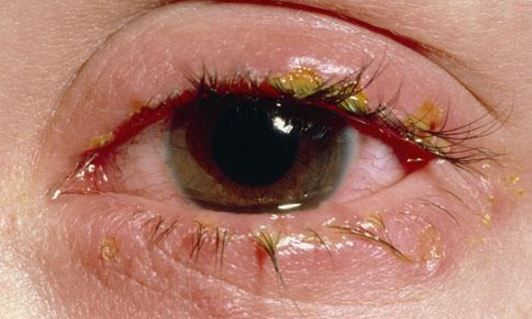 how to get rid of swollen eyes from infection