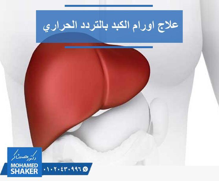 هل تتسائل عن كيفية حرق ورم الكبد بالتردد الحراري و الميكرويف دون الحاق الضرر بخلايا الكبد السليمة يحدث ذلك عن طريق الاسترشاد بالأشعة المقطعية فى وضع إب Shaker