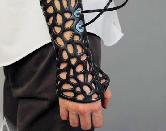 Osteoid 3D Printed Cast, Deniz Karahasin Osteoid, 3d printed cast, ultrasound cast, sound healing, bone healing, medicine devices, medicine ...