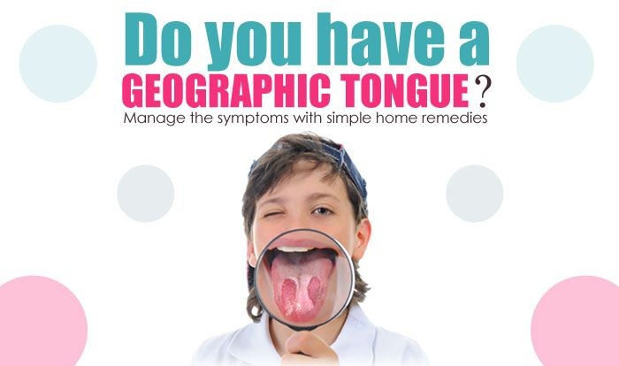 Geographic tongue, also known as benign migratory glossitis, is a harmless yet annoying condition that mostly affects the top and sides of your tongue. It causes the areas of papillae to become white and more pronounced, thus causing red, white and pink patches on the tongue that change position with time. In some cases, the tongue …