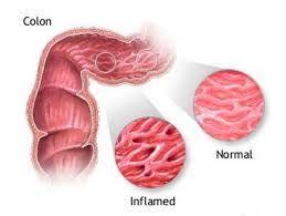 Sindromul colonului iritabil este un sindrom caracterizat prin diverse http://www.medpont.ro/medicina-interna/sindromul-colonului-iritabil/