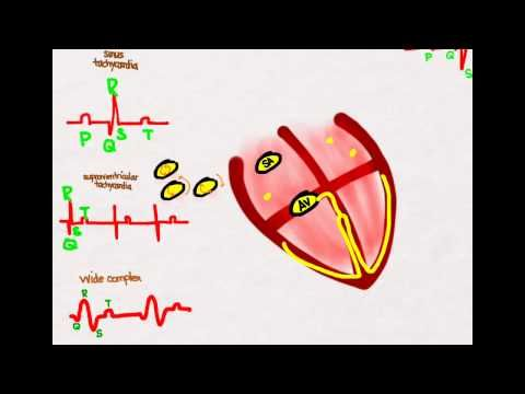 Pediatric Advanced Life Support (#PALS) whiteboard video lesson about Tachycardias by the #ACLS Certification Institute. Our PALS training series covers everything you need to know to pass your PALS course. Visit us online at http://www.aclscertification.com for more free material or subscribe to the #ACLSCertificationInstitute Youtube channel at http://www.youtube.com/aclsinstitute #BLS #nurse #doctor #emt #paramedic #premed