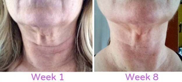 Best Skincare Tips for Your 40s - My Neck Firming Results -Check Out These Step By Step, Easy Anti Aging Routines and Skin Care Tips For Women. We Cover Essential Oils, Eye Creams, And Makeup Tips To Help You Stay Looking Younger To Keep That Beautiful Face And Beauty. Anti-Aging Products And Routines That You Can Do At Home To Prevent Wrinkles, Hide Puffy Eyes And Dark Circles, And Cover Acne Scars. Also Included Are Skin Masks, Vitamins, And Skincare Products To Restore Your Natural Beauty…