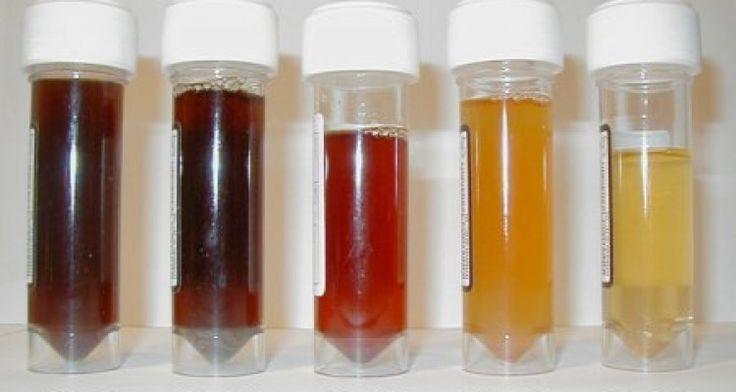 Nuestra salud y el color de la orina  En primer lugar hemos de saber una cosa: la orina se origina tras un filtrado por los riñones. Después de este proceso llega a la vejiga una mezcla de agua y toxinas que el organis