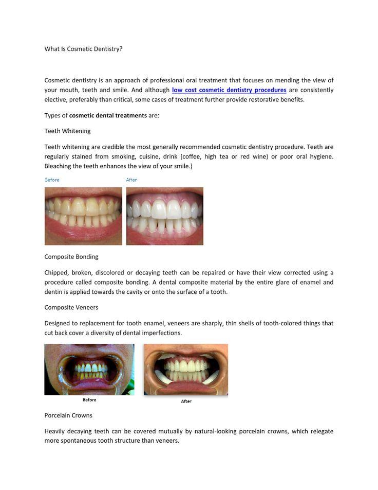 35 best dental care images on pinterest dental care dental