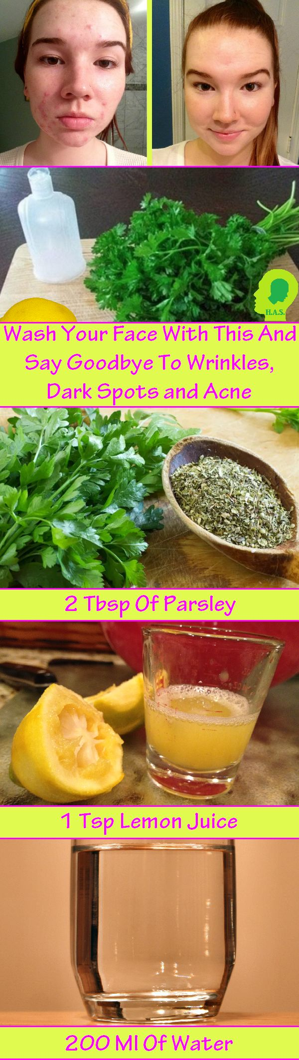 It will remove all the acnes, dark spots and will whiten your face and skin, providing a shiny and healthy skin.