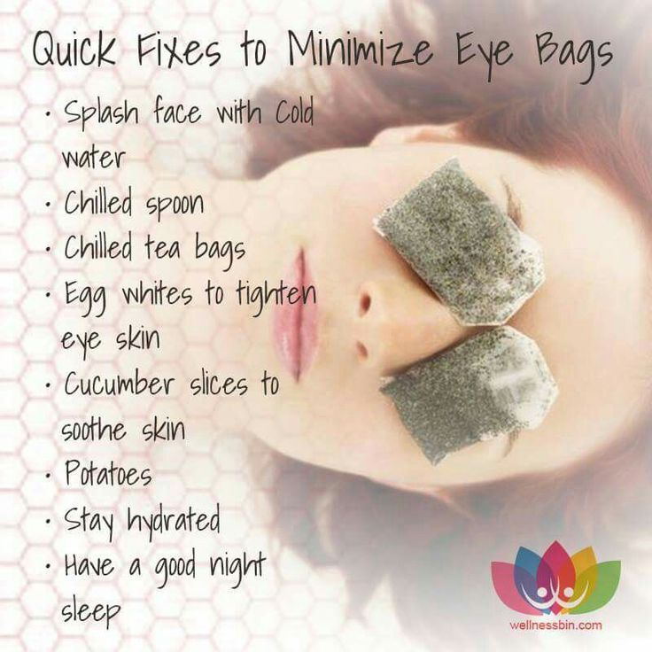 Naturally get rid of or reduce eye bags