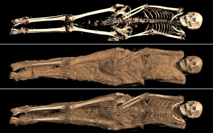 Hospital scans help British Museum discover the secrets Egyptians took to   their grave, including one woman's intimate tattoo
