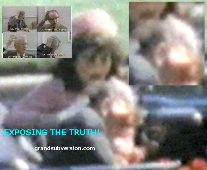 Dallas Doctors wounds injury parkland hospital jfk kennedy assassination zapruder film photo footage head shot