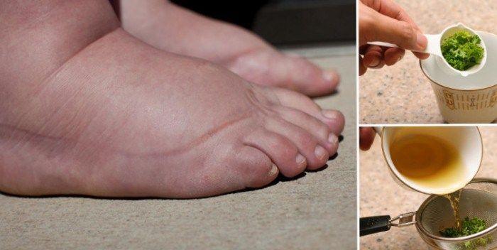 De meest krachtige natuurlijke remedie voor gezwollen benen!