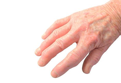 How to deal with arthritis in your hands without using meds.