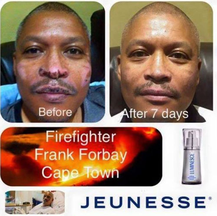 This is simply incredible!  One of our Jeunesse South Africa team recently gave a Cape Town firefighter a bottle of our serum to use after he was badly burnt in the recent fires that swept over the Cape Peninsular a few weeks ago. These are the results after only one week. Tell me this stuff isn't miraculous!  These amazing products work at a cellular level using patent pending stem cell technology to rejuvenate and repair your skin. Goodbye wrinkles, scars, acne, stretch ma