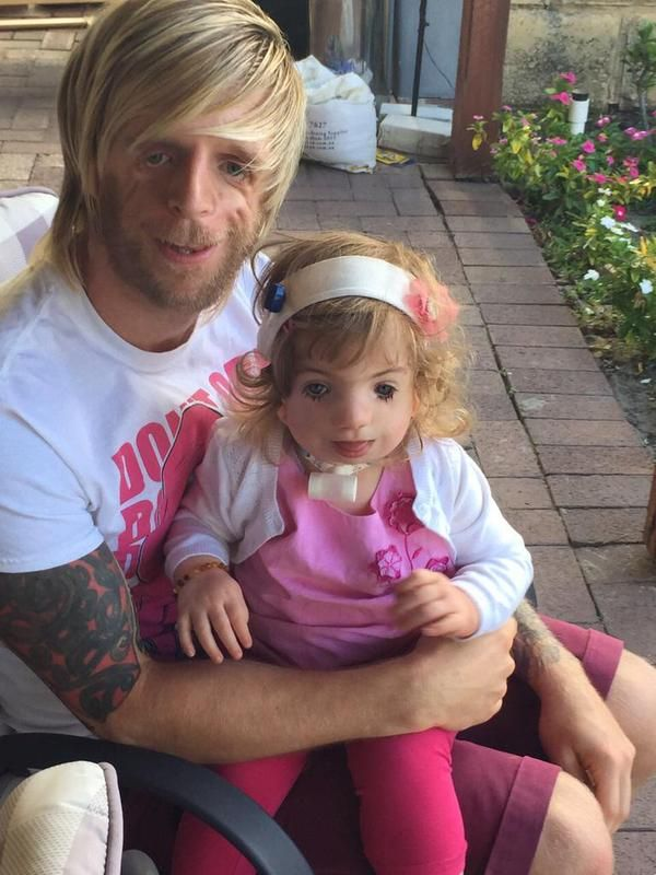 A Man From Yorkshire Flew To Australia To Meet A Child With The Same Rare Genetic Condition As Him