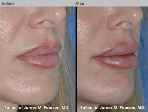 For individuals seeking permanent lip enhancement, a lip implant may be an option. The Perma Facial Implant has been FDA approved since 2007. Used for the enhancement of thin, aging lips, the Perma Facial Implant is placed during an in-office procedure using only local anesthesia. Learn more at http://www.pearsonmd.com/lip-implant.htm #PearsonMD #DrJamesPearson #DrPearson #PlasticSurgery #FacialPlasticSurgery #cosmeticsurgery #lipimplant #lipenhancement