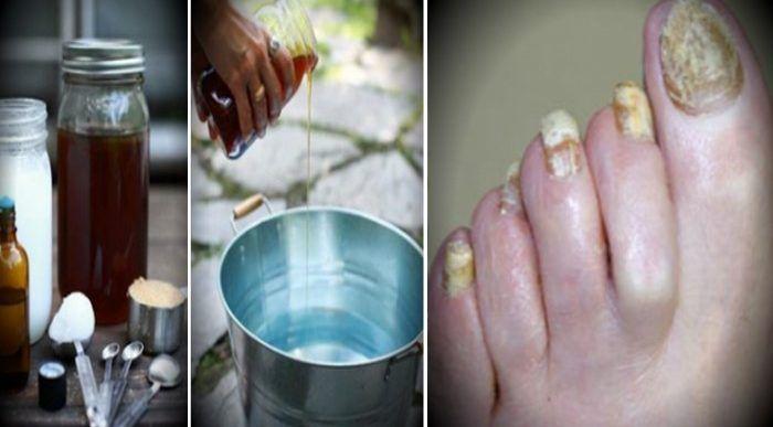 Le champignon de l'ongle, appelée également mycose des ongles ou onychomycose, est une infection fongique très répandue. Bien qu'elle n'ait aucune incidenc