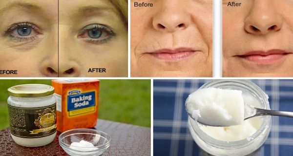 Say Goodbye To Wrinkles And Facelifts With This Homemade Lotion – Magical Recipes For Healthy Life