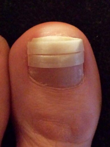 Encurvated toenail cure.  I suffer from encuvated toenails which causes similar pain to that of ingrown toenails.  This simple trick provided indtant relief.  Take the ribs from a Breath-Rite strip, soak it in acetone to take the adhesive off.  Use an emory board to roghen up one side of the strip.  Cut a strip to fit the entire width of the toenail, even the curved sides.  Use a small dot of glue on each side of the toenail.   Do not glue across the whole strip.  Leave some room for things…