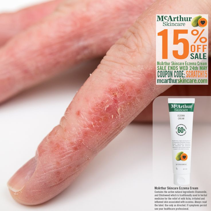 McArthur Skincare's Eczema Cream is listed on the Australian Register of Therapeutic Goods. It contains the active natural ingredients Chamomile, and Chickweed which is traditionally used in herbal medicine to assist with the relief of itchy, irritated and inflamed skin associated with mild eczema.  Eczema Cream On Sale - Save 15% OFF during Eczema Awareness Month Buy Now: http://mcarthurskincare.com/products/eczema-cream-75g/ Use Coupon Code: SCRATCH15  This offer is not available in…