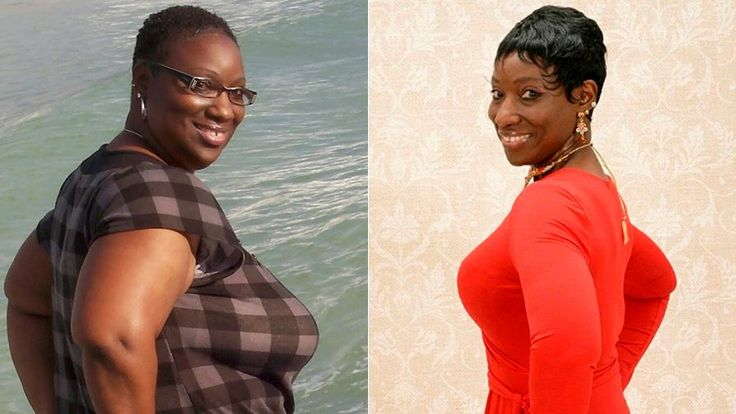 FOX NEWS: Go figure! Woman stops gorging on raw bacon loses 150 pounds clears up skin condition