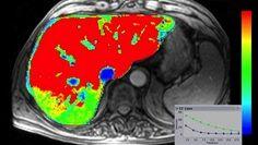 Body Imaging - Magnetic Resonance Imaging - Categories - gehealthcare.co.uk