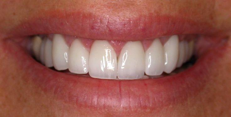 Porcelain Veneers - Поиск в Google | Smile | Pinterest ...