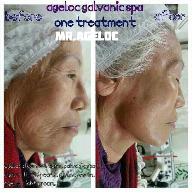 First treatment for a friend's grandmother. Incredible results: lines and wrinkles minimised, face is lifted, firmed, and more contoured- she looks years younger! To extend the years you look feel live young, there is only ageLOC.  #spa #beauty #skincare #skin #health #wellness #tbt #facial #face #wrinkles #lifting #fresh #Sydney #facelift #natural #beautyblogger #clean #healthyaging #lookfeelliveyounger #antiaging #lifestyle #skinhealth #moisturise
