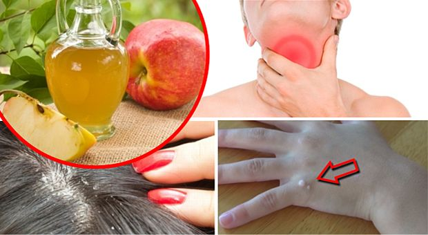 Secretele: Ingredientul nelipsit din bucatarie care amelioreaza inflamatia din gat, elimina matreata, vindeca negii si acneea!