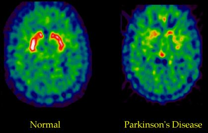 Parkinson's Disease: Moving Forward - All Modules