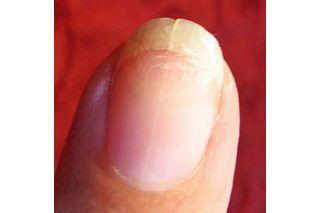 How to Stop a Running Split Fingernail | eHow