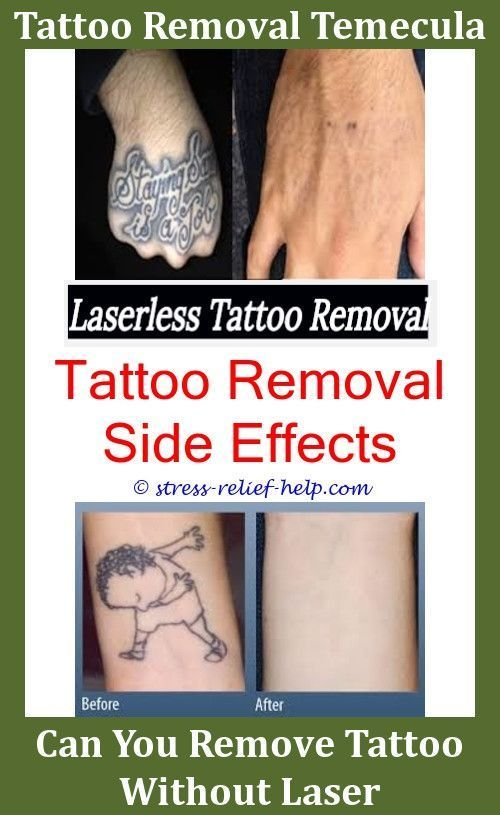 Tattoos Removal How To Numb Skin Before Tattoo Removal How Can You ...