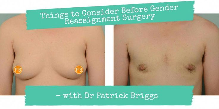Tenacious convicted Breast enlargement before and after this article