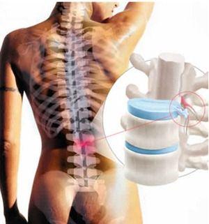 """Una hernia de disco que resulta en un nervio comprimido puede causar una serie de síntomas dolorosos e incómodos. """"Hernia discal"""" es un término para un disco intervertebral que se rompen o hernia discal y expulsa la materia, a veces """"pellizco"""" raíces nerviosas vecinas. Dependiendo de la cantidad de material del disco que ha sido desplazado, los síntomas pueden variar desde agudo y poco frecuentes a sordo y persistente."""