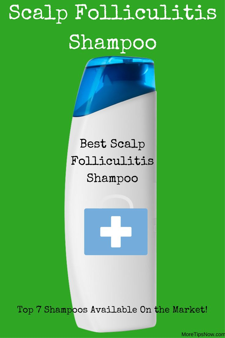 A scalp folliculitis shampoo is needed when you are suffering from an inflammation in the hair follicles. Here are the top 7 scalp folliculitis shampoos available at the moment.