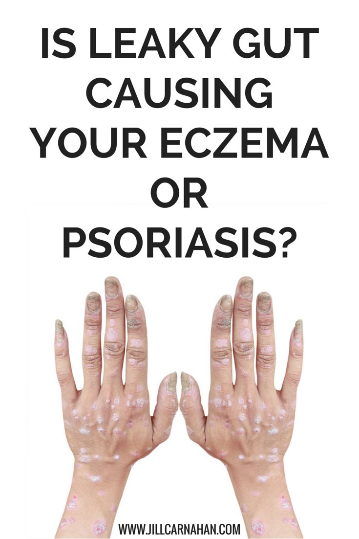 psoriasis treatment how to heal yourself naturally and win your health back forever