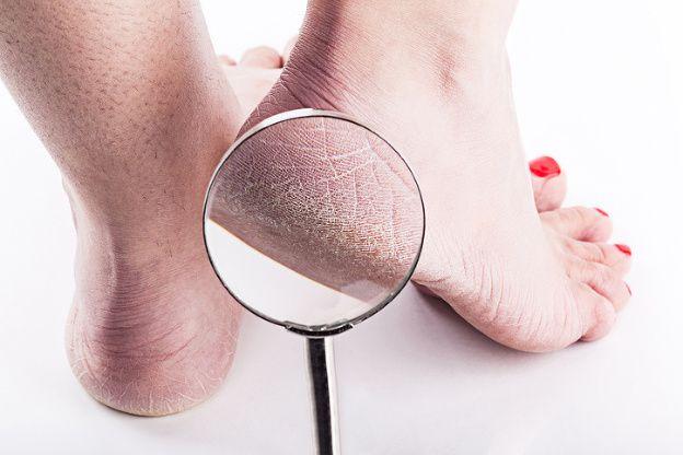 Suché a popraskané päty trápia nejednu ženu. Okrem toho, že ide o estetický problém, môže byť aj riadne bolestivý. Poradíme vám, ako sa ho zbaviť.