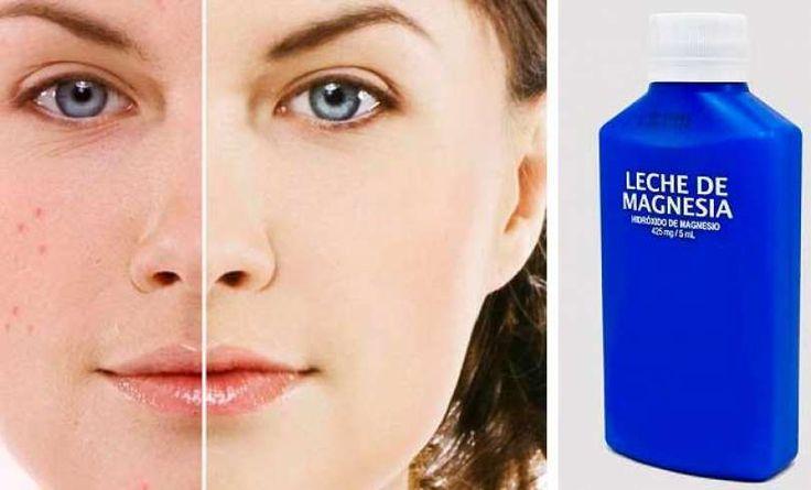 Sorprendentes usos de la leche de magnesia en salud y belleza que no conocías