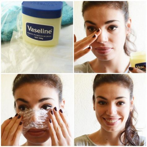 9natural remedies toget rid ofblackheads  The best time to use this trick is right after the shower because the heat from the water will have opened your pores. Begin by applying Vaseline to the affected area that needs to be treated. Once you have finished with it, place the plastic wrap over the Vaseline. With the wrap still in place, apply a hot towel and let it sit until it cools back down to room temperature. Then use a tissue to remove any excess Vaseline from your face, and gently…