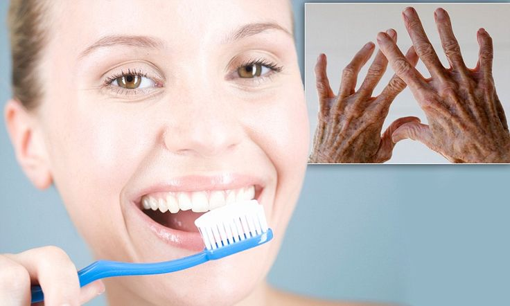 Clean teeth can hold off arthritis: Scientists discover link between gum disease bacteria and early onset of the condition