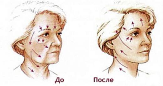 Хочешь всегда выглядеть молодо – выполняй эту процедуру каждый вечер! Уже через неделю ты увидишьсущественные изменения, улучшится тонус кожи и станет четче овал лица! Тебе потребуется не более 15 минут. Результат восхитительный! Лицо и шея — визитная карточка женщины, поэтому они требуют наиболее внимательного и тщательного подхода к уходу за ними. C возрастом мышцы лица […]