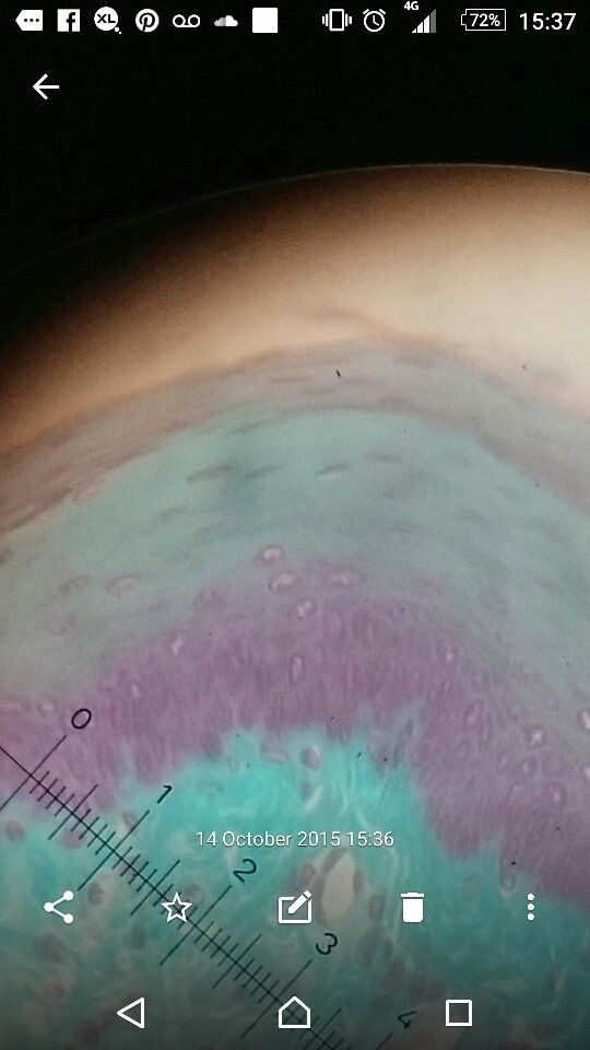 Stratified squamous epithelium from the oesophagus with cuboidal columnal at the bottom