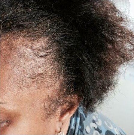 Scalp Micropigmentation Before http://www.3dvolumelash.com/scalp-treatment-fayetteville-nc/rt8tcj3hpw75rotkrj7icbmgvayguc