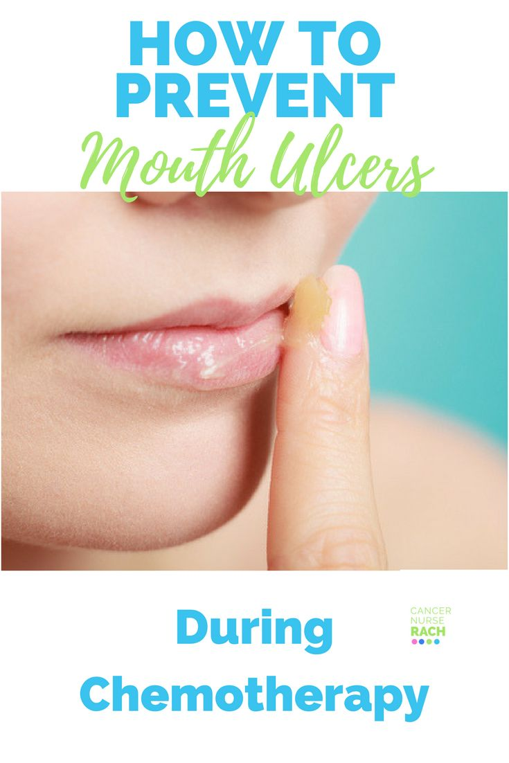 Mouthcare tips to help prevent mouth ulcers and manage dry mouth during chemotherapy.