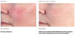 Chemical Peel - Rosacea