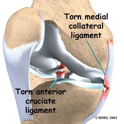 the impact of suffering a torn anterior cruciate ligament Anterior cruciate ligament (acl) tears are common, functionally disabling, and   the aim of this study is to describe the effect of acl-injuries on thigh muscle size  and  there are also indications that persons who suffer acl-injuries are not.