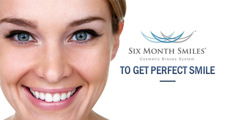 6 month smiles is perfect for anyone who wants a beautiful smile without having to wear conspicuous braces for long periods of time.
