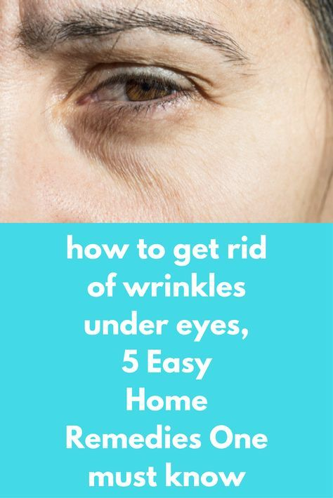how to get rid of wrinkles under eyes, 5 Easy Home Remedies One must know Wrinkles and dark spots under the eyes make a person look older. Apart from being a beauty hazard and zapping your confidence in front of people, wrinkles under the eyes are an indication that your body is not getting the amount of sleep it requires. First, get a good night's sleep and then follow these …