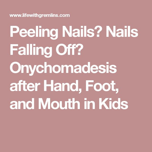 Peeling Nails? Nails Falling Off? Onychomadesis after Hand, Foot, and Mouth in Kids
